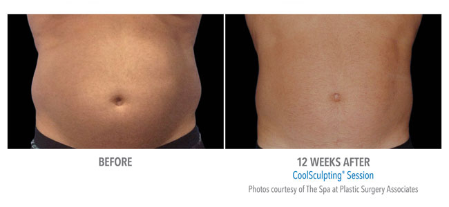 Home Coolsculpting Belle Marin Aesthetic Medicine